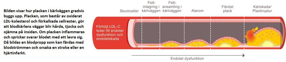 Schematisk illustration av blodkärl som förklarar förhöjt LDL-C, som leder till endotelial dysfunktion och endotelskada.