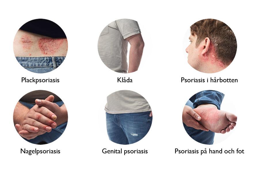 Sex former av psoriasis visas i sex cirklar.