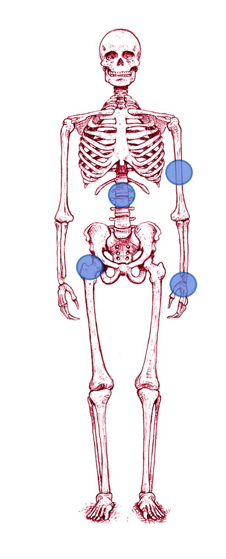 Skelettillustration som visar var benskörhet vanligtvis uppkommer.